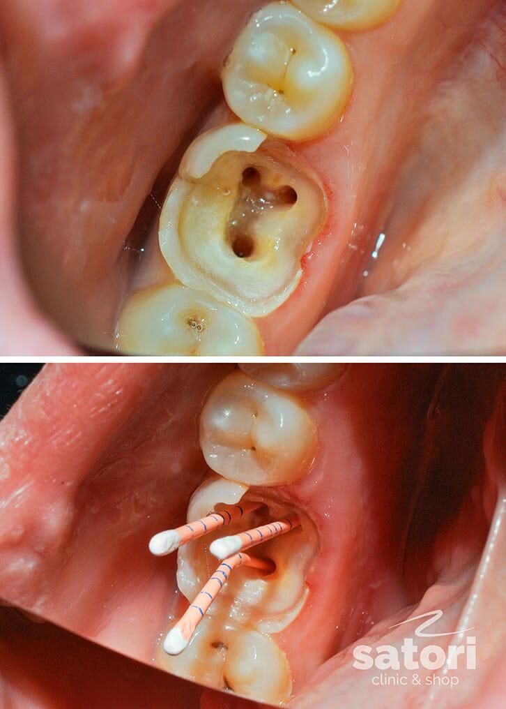 Пульпит зуба: что это такое, причины появления, диагностика и лечение | rvdku.ru