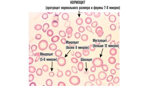 Причины появления пойкилоцитоза в анализе крови и его лечение