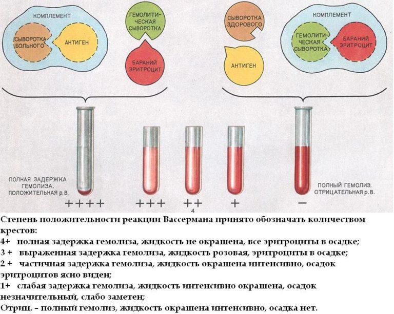 Анализ крови на сифилис (rw)                                            (реакция вассермана)