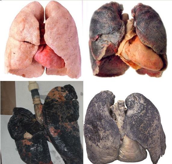 Что такое лёгкий