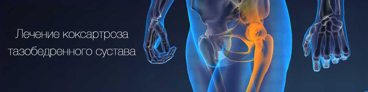 Коксартроз тазобедренного сустава: лечение, симптомы, осложнения, профилактика