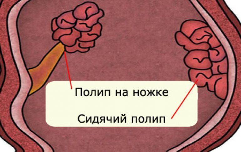 Полипы в матке у женщин: что это такое, симптомы, причины образования, лечение