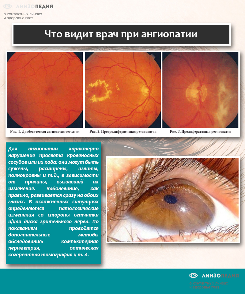 Ангиопатия сетчатки глаза — что это такое и лечение