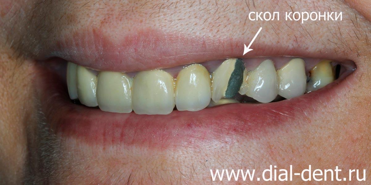 Сколько стоит коронка на зуб: цена, фото