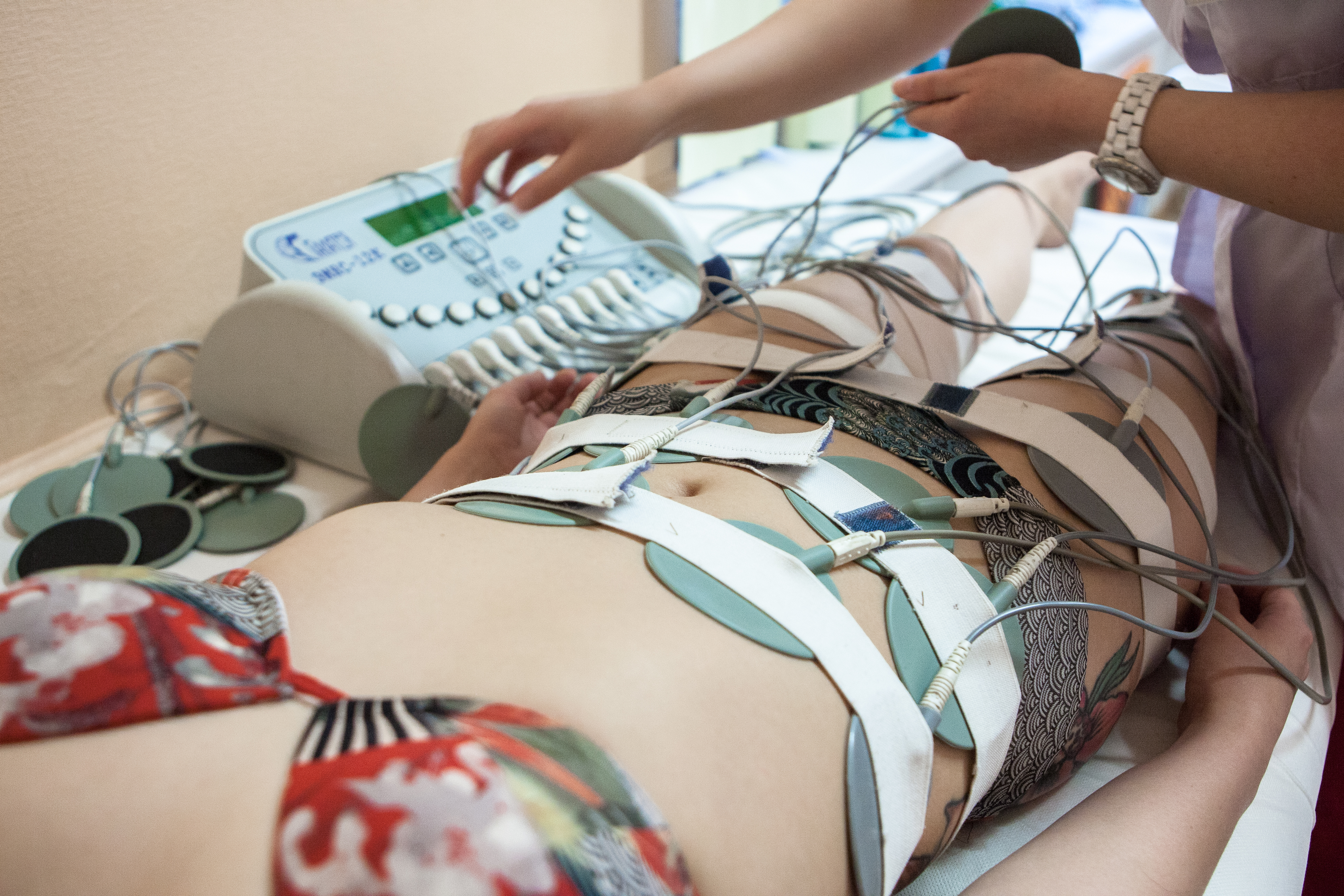 Миостимуляция тела: укрепление мышц без усилий (борьба с целлюлитом)