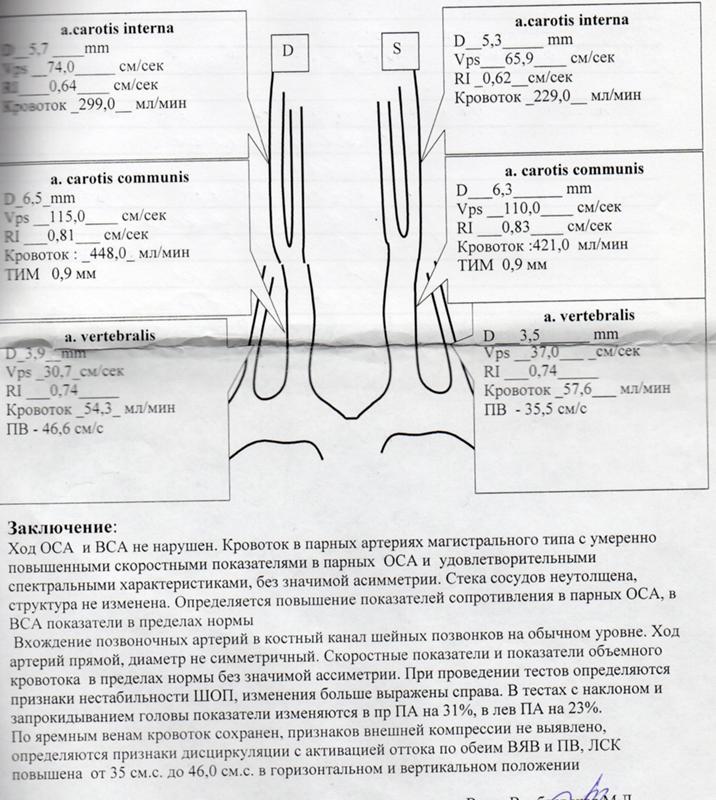 Дуплексное сканирование брахиоцефальных артерий и сосудов (уздс бца): что это такое, расшифровка заключения, виды (триплексное, цветовое, с цдк, допплер), исследование маг, цена
