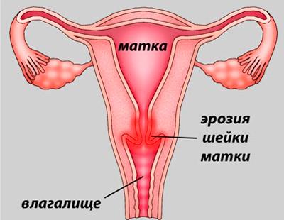 Эрозия шейки матки: что такое, причины, симптомы и лечение
