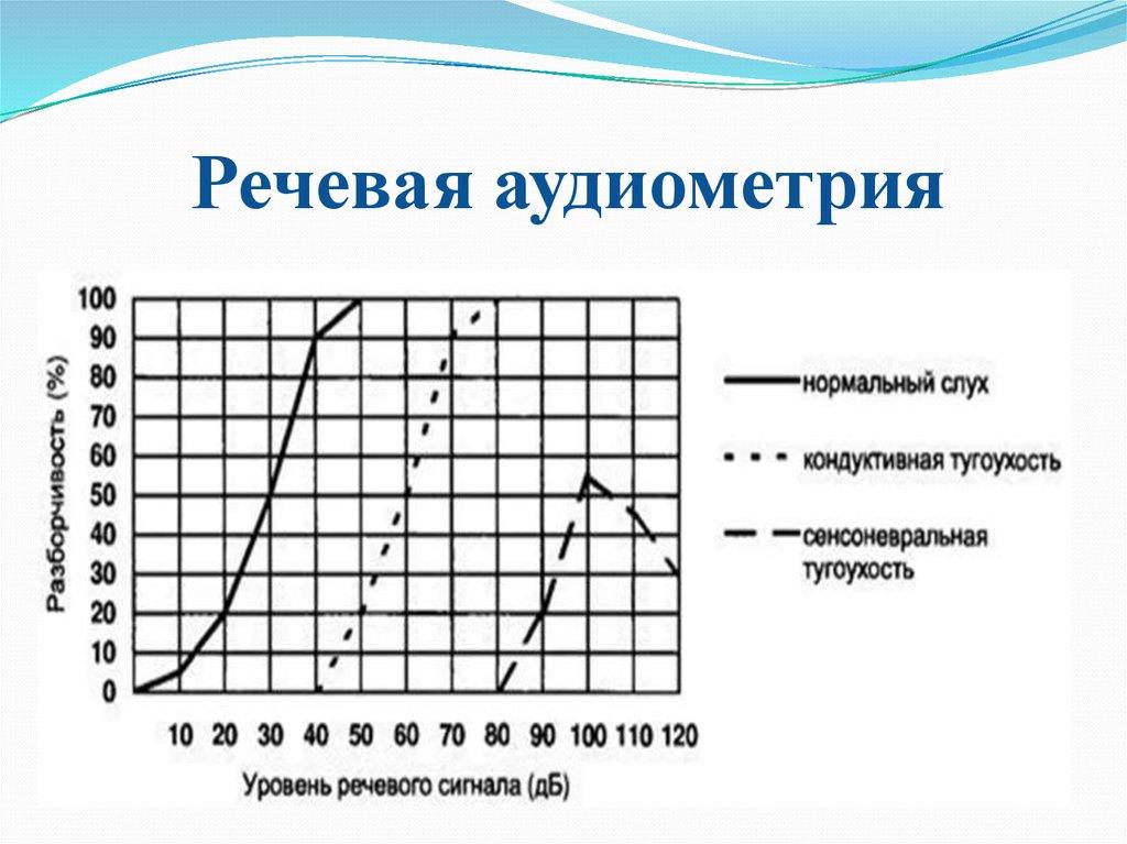 Аудиометрия и аудиограмма слуха: таблица расшифровки и норма здорового человека