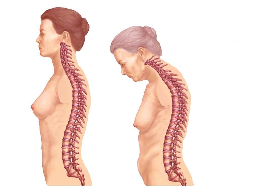Болезнь бехтерева: симптомы, причины, диагностика и лечение