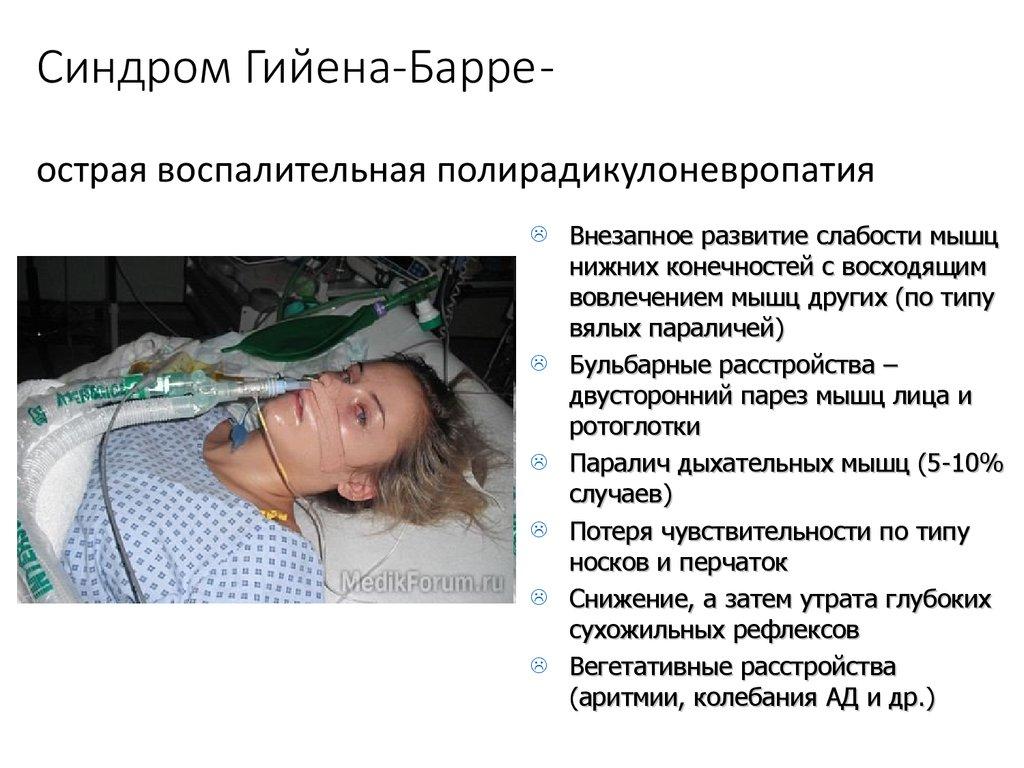 Синдром гийена: причины, симптомы, диагностика и лечение