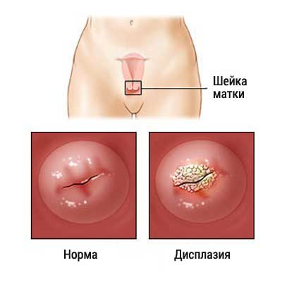 Дисплазия 1 2 степени шейки матки лечение