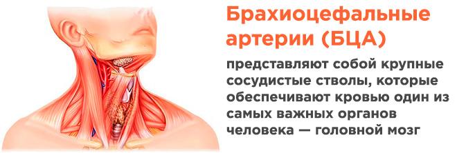 Узи брахиоцефальных артерий норма расшифровка - клиника онлайн