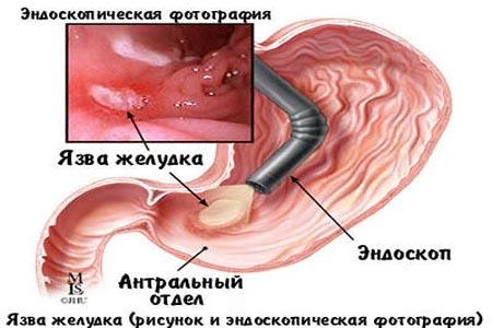 Фиброгастроскопия – ранняя диагностика рака желудкапарашистай фиброгастроскопия – ранняя диагностика рака желудка