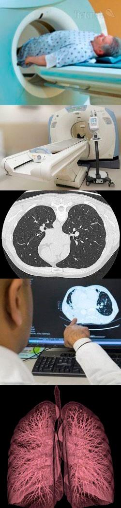 Кт легких: что показывает компьютерная томография бронхов, как проводится