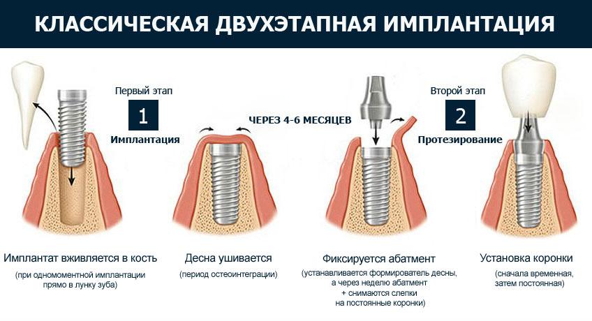 Абатменты на импланты — что это такое: разновидности, особенности имплантации
