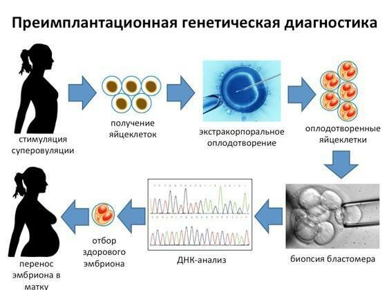 Что такое икси – интрацитоплазматическая инъекция сперматозоидов, как проходит процедура?
