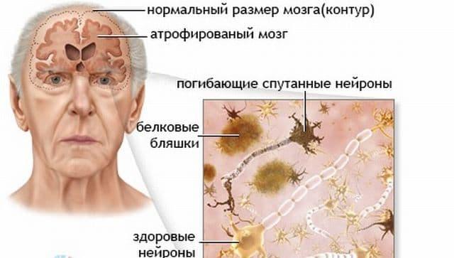 Что такое цианид? цианиды и их влияние на организм человека