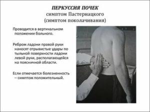 Симптом пастернацкого: факторы, диагностика, терапия - нет заразе
