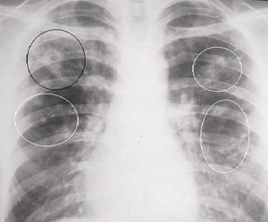 Туберкулома правого и левого легких: лечение, заразна или нет