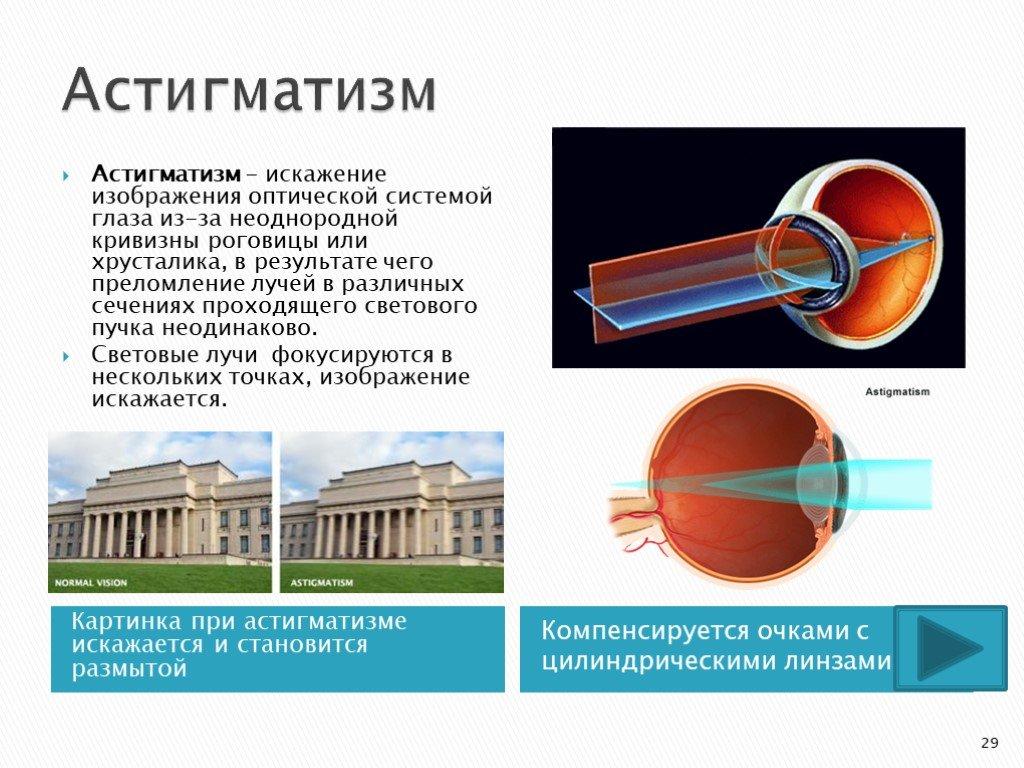 Астигматизм: причины, симптомы, диагностика, лечение астигматизма