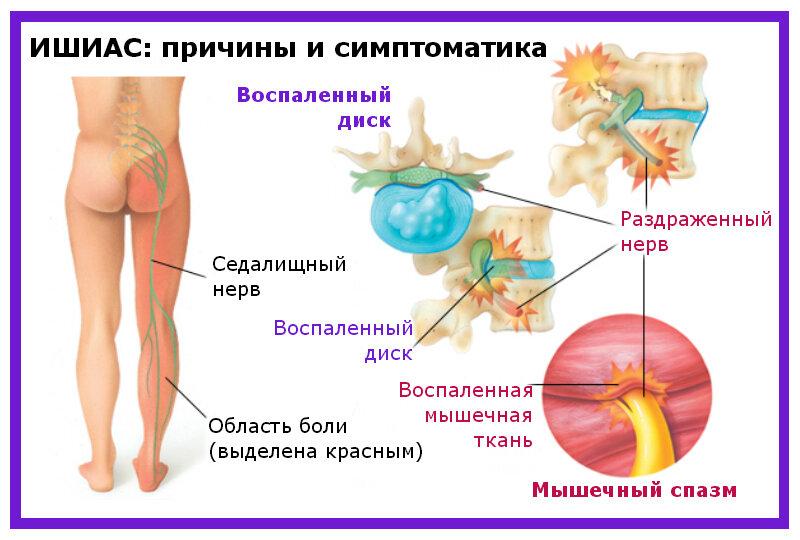 Ишиас – симптомы и лечение в домашних условиях!