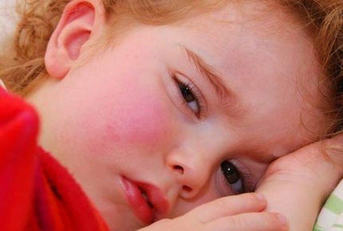 Гипертермия - что это такое, причины, симптомы, виды, опасность для человека и первая помощь