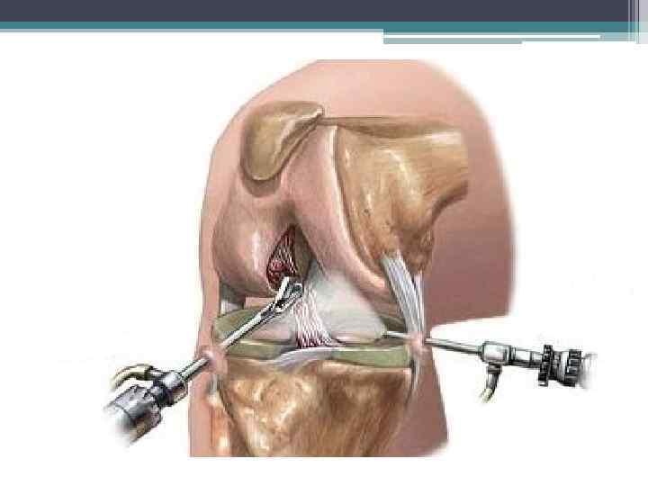 Удаление мениска коленного сустава: показания, результаты, последствия