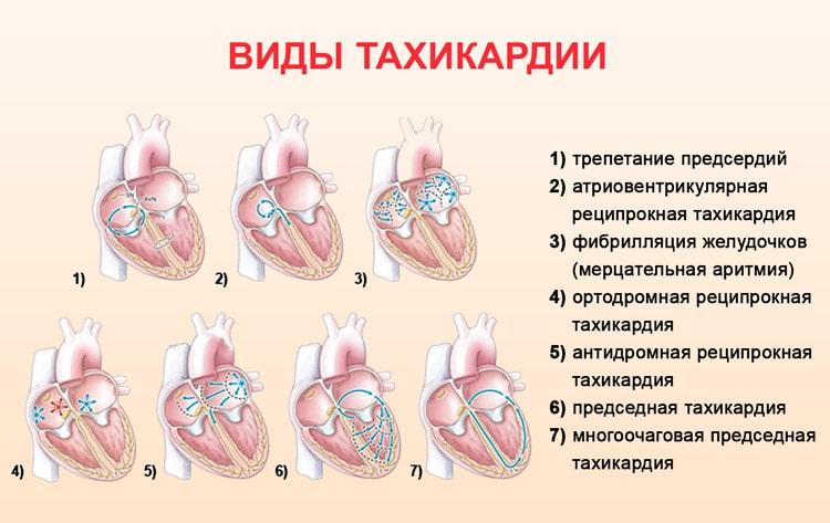 Тахикардия - симптомы и лечение приступов болезни медикаментозными и народными средствами
