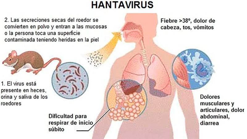 Хантавирус в китае - что это: первые симптомы, сколько зараженных 2020