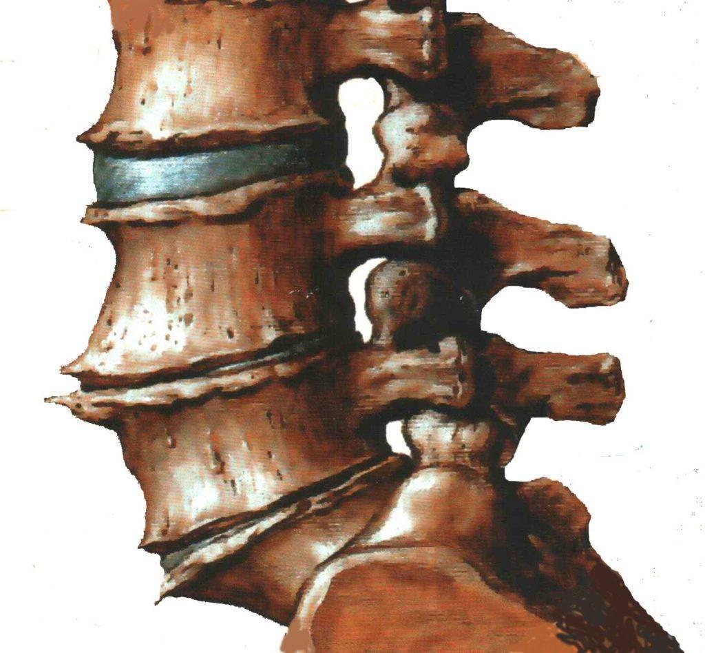 Шейный спондилез: симптомы, лечение и возможные осложнения