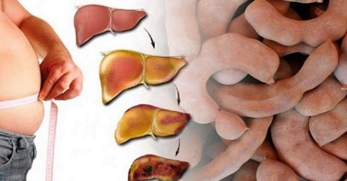 Правильная диета при жировой дистрофии печени