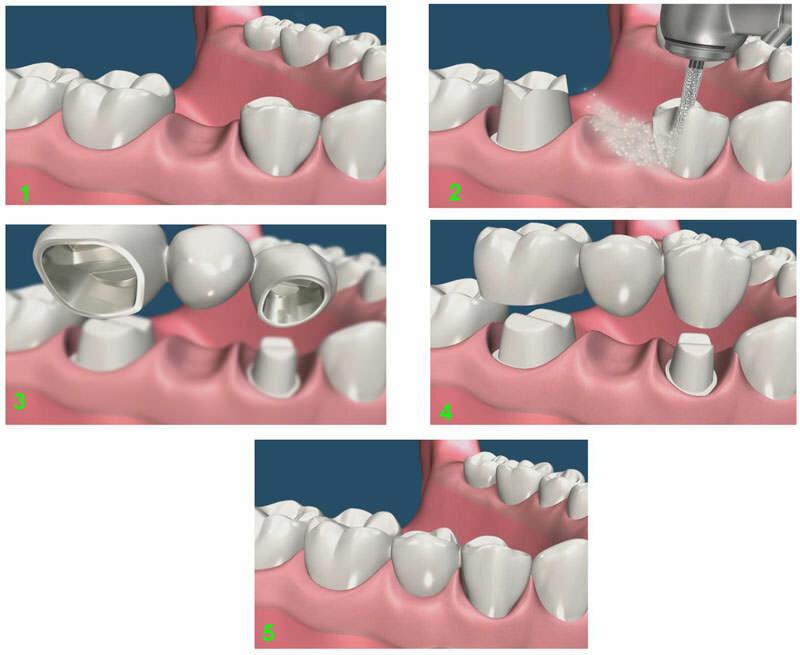 Как делают и ставят коронку на зуб: больно ли, этапы установки, процесс подготовки зуба