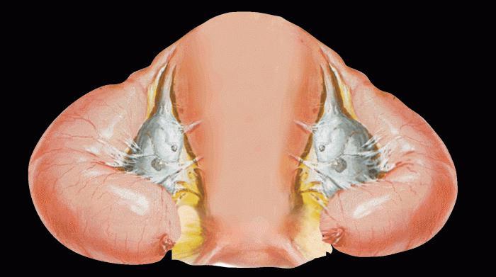 Что такое сактосальпинкс в гинекологии - клиника онлайн