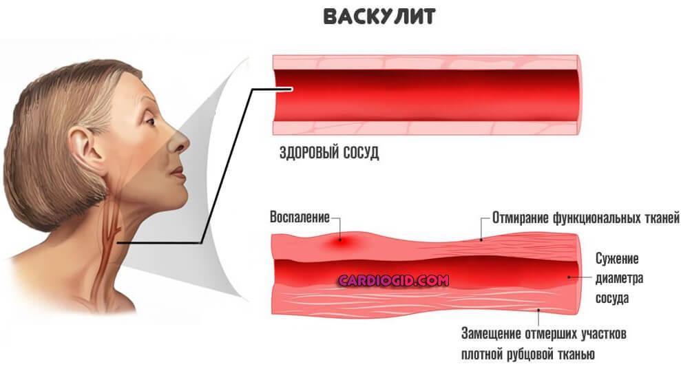 Брахиоцефальные артерии что это такое — сердце