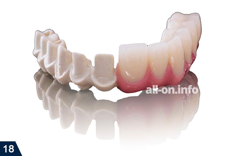 Съёмное протезирование зубов как происходит