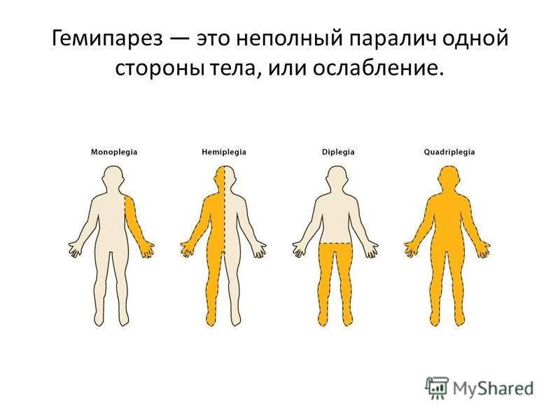 Левосторонний и правосторонний гемипарез: что это такое, комплекс упражнений для лечения у детей и взрослых