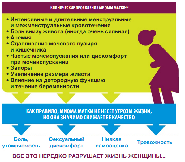 От чего появляется миома матки: причины и почему бывает миома у молодых женщин, лечение миоматозных узлов в москве