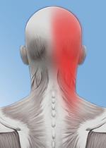 Вертеброгенная цервикокраниалгия: что это за диагноз и способы лечения постоянных сильных головных болей