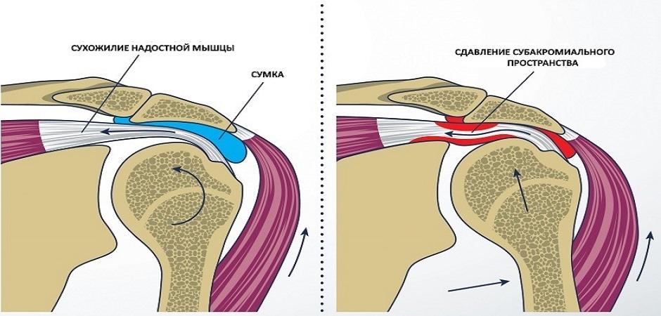Бурсит плечевого сустава: причины и симптомы заболевания