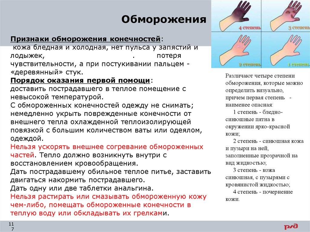 Обморожение: причины, признаки, помощь и 7 народных рецептов