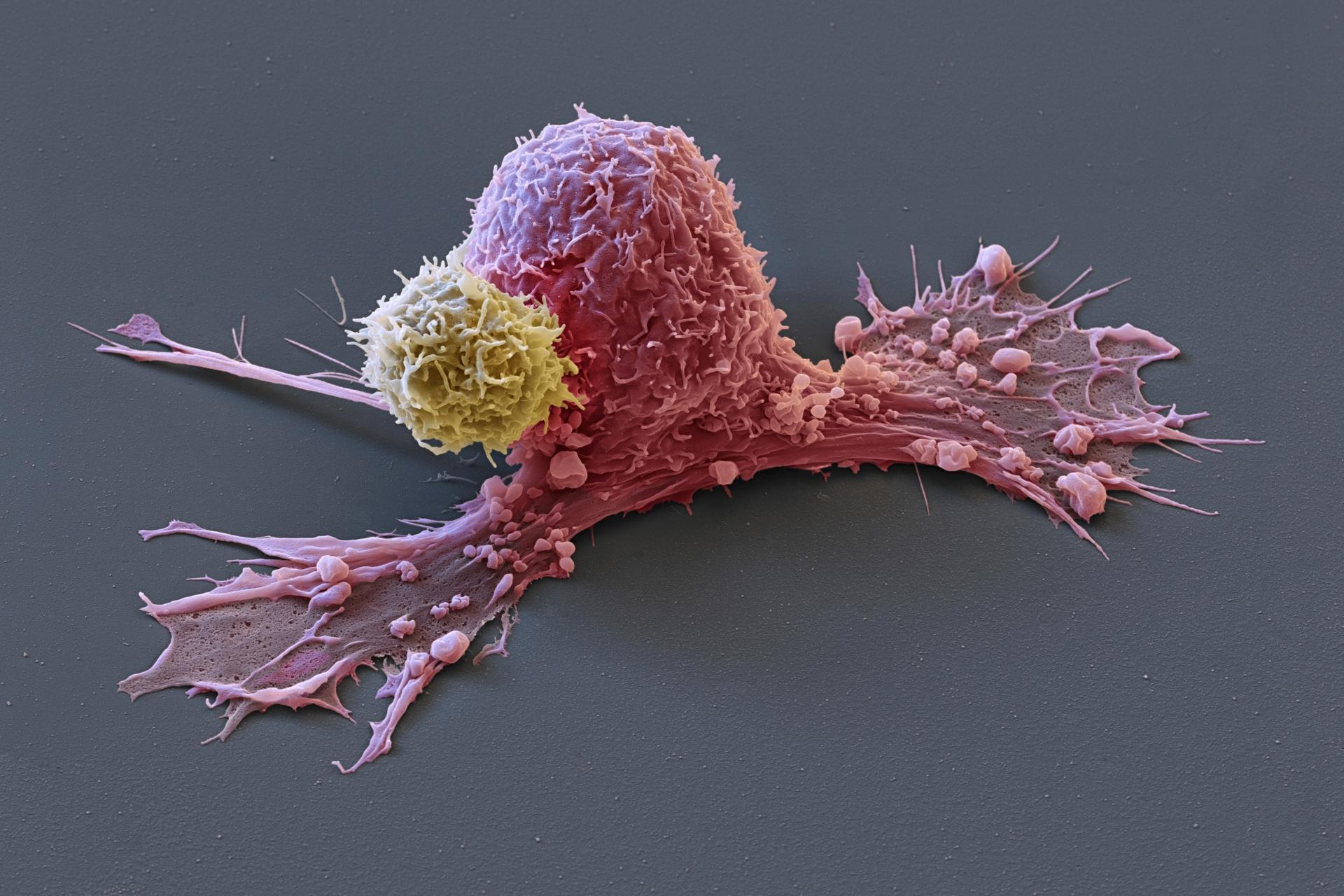 Виды рака: 28 самых встречаемых онкологических заболеваний — net-bolezniam.ru
