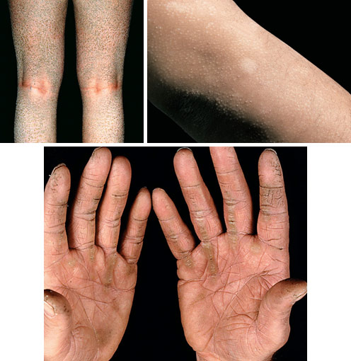 Гиперкератоз - причины, симптомы, диагностика и лечение и профилактика продукцией бренда pleyana