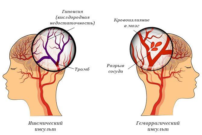 Геморрагический инсульт: описание, причины, симптомы, методы диагностики и лечения, прогноз | клинический институт мозга | яндекс дзен