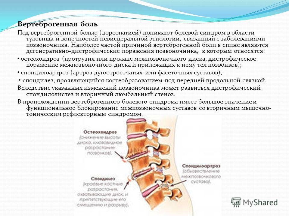Вертеброгенная люмбалгия: симптомы и лечение