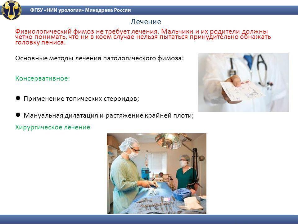 Фимоз у мальчиков, что это такое, признаки, симптомы и лечение | prof-medstail.ru