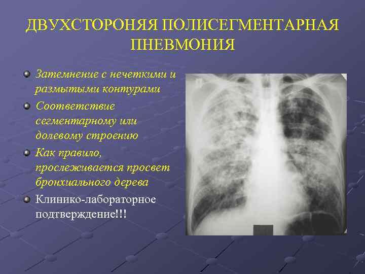 Двусторонняя полисегментарная пневмония: причины, симптомы, диагностика. лечение полисегментарной пневмонии в москве