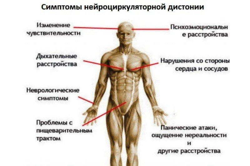 Сактосальпинкс