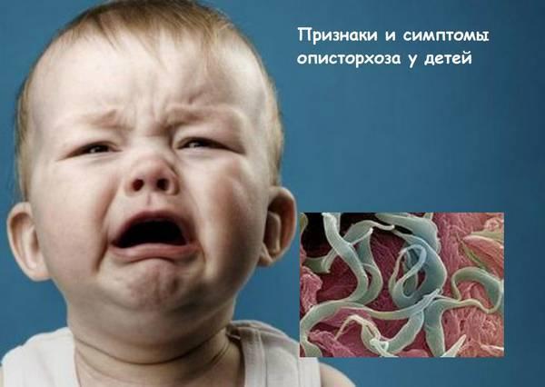 Описторхоз у взрослых и детей - лечение, симптомы, анализ на описторхоз