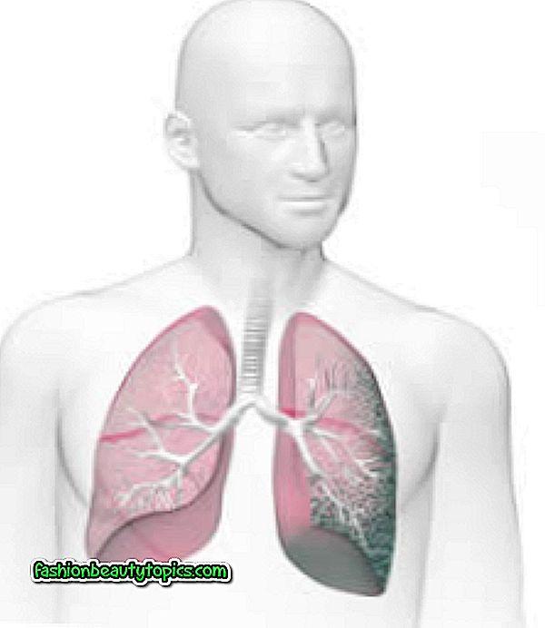 Как лечить пневмосклероз легких в пожилом возрасте: медикаменты, физиопроцедуры и лфк