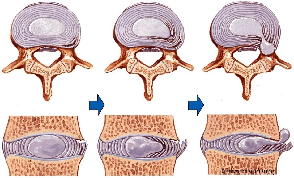 Что такое протрузия диска позвоночника? | спина доктор